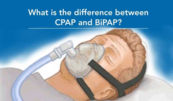 What is the difference between CPAP and APAP?